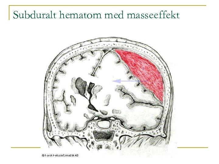 Subduralt hematom med masseeffekt