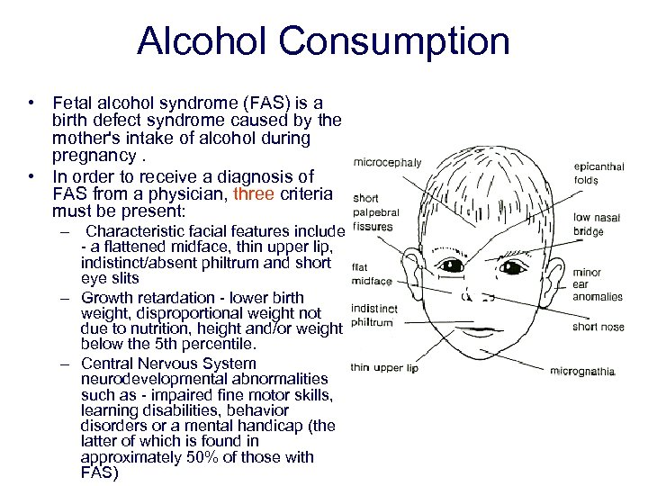Alcohol Consumption • Fetal alcohol syndrome (FAS) is a birth defect syndrome caused by