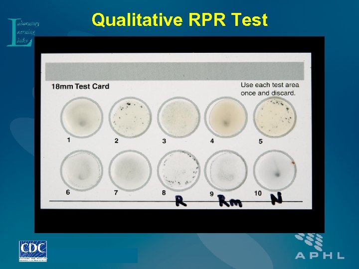 Qualitative RPR Test