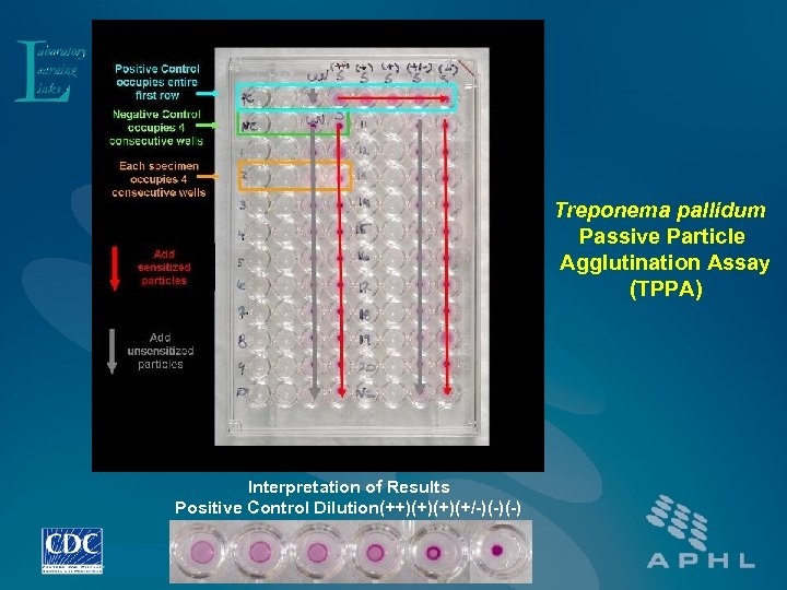 Treponema pallidum Passive Particle Agglutination Assay (TPPA) Interpretation of Results Positive Control Dilution(++)(+)(+)(+/-)(-)(-)