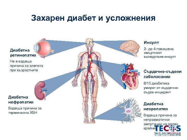 Захарен диабет и усложнения Инсулт Диабетна ретинопатия Не е водеща причина за слепота при