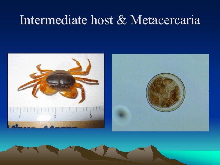 Intermediate host & Metacercaria