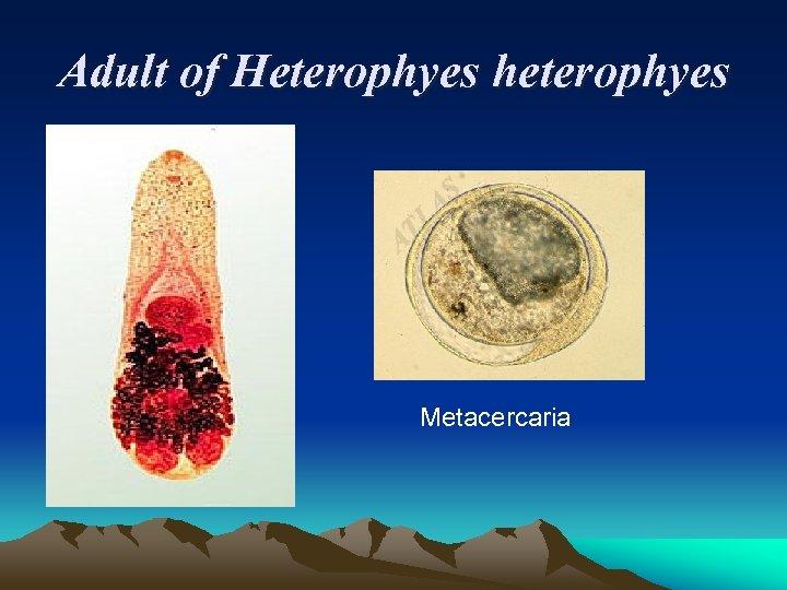 Adult of Heterophyes heterophyes Metacercaria