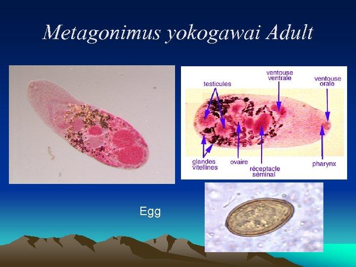 Metagonimus yokogawai Adult Egg