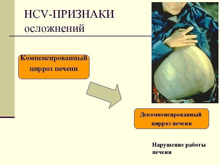 HCV-ПРИЗНАКИ осложнений Компенсированный цирроз печени Декомпенсированный цирроз печени Нарушение работы печени