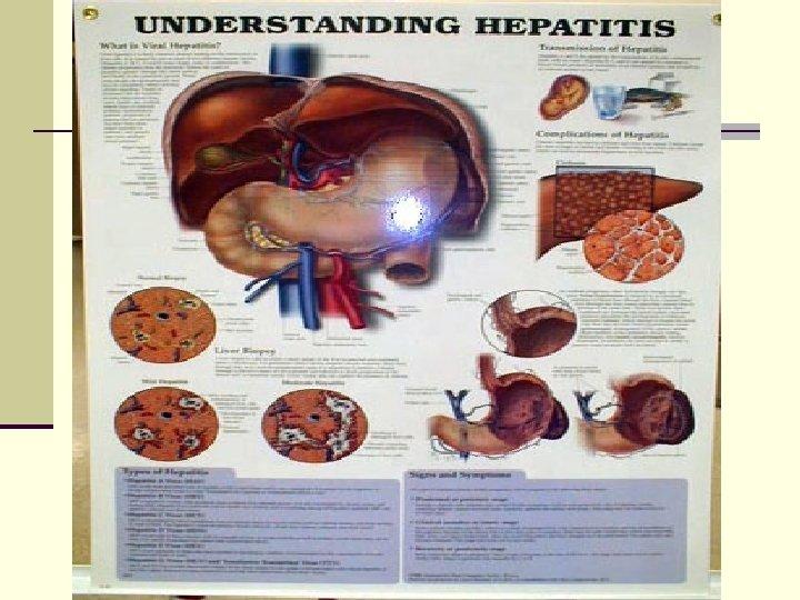 Лекция по вирусному гепатиту в и с