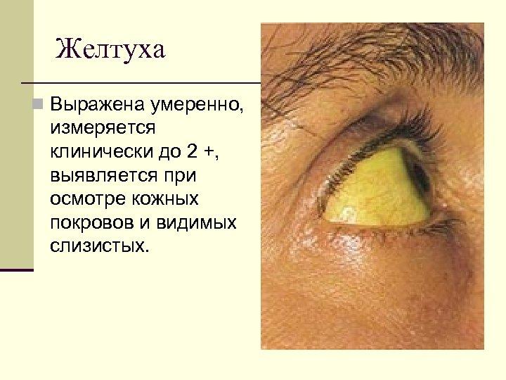 Желтуха n Выражена умеренно, измеряется клинически до 2 +, выявляется при осмотре кожных покровов