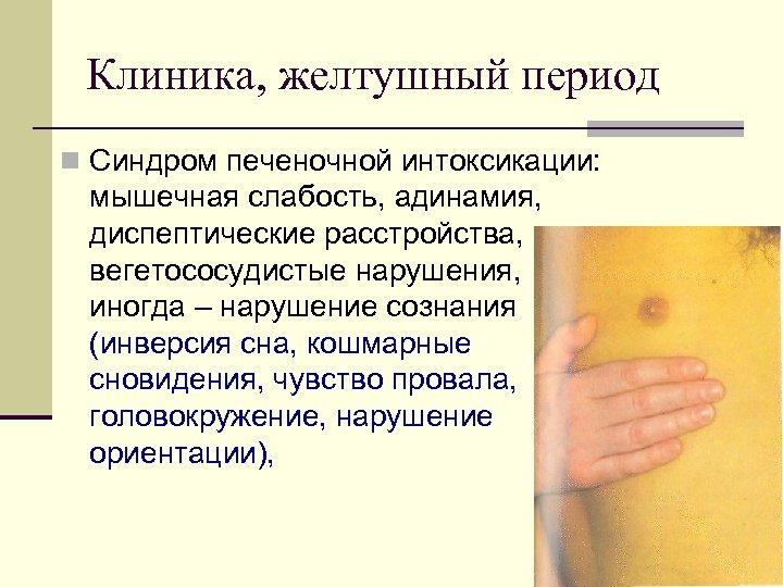Клиника, желтушный период n Синдром печеночной интоксикации: мышечная слабость, адинамия, диспептические расстройства, вегетососудистые нарушения,