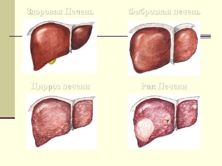 Здоровая Печень Фиброзная печень Цирроз печени Рак Печени
