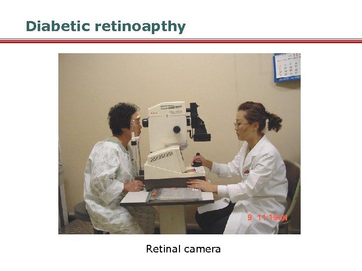 Diabetic retinoapthy Retinal camera