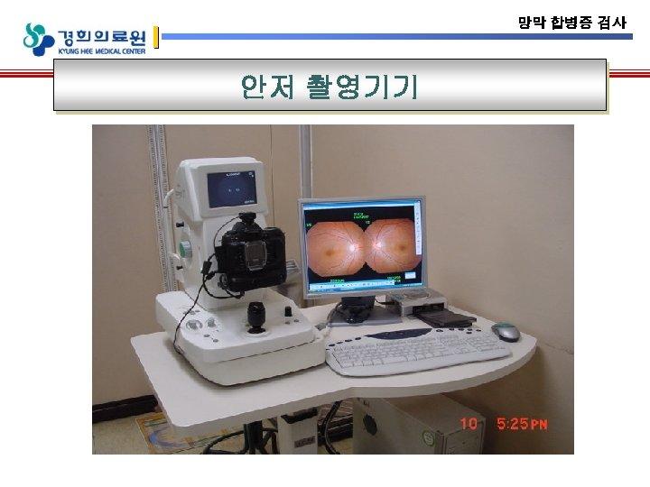 망막 합병증 검사 안저 촬영기기
