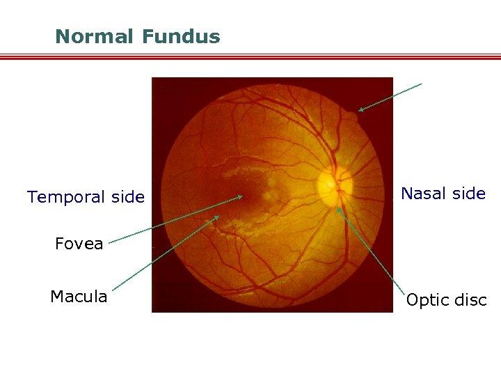 Normal Fundus Temporal side Nasal side Fovea Macula Optic disc