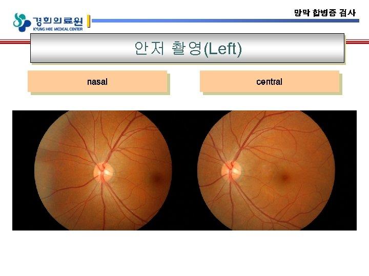 망막 합병증 검사 안저 촬영(Left) nasal central
