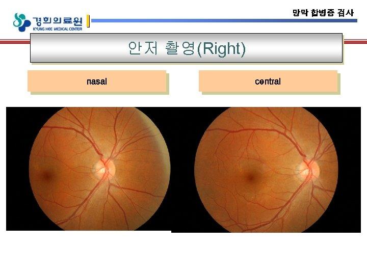망막 합병증 검사 안저 촬영(Right) nasal central