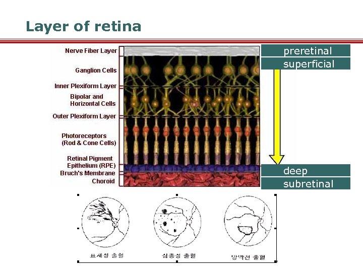 Layer of retina preretinal superficial deep subretinal