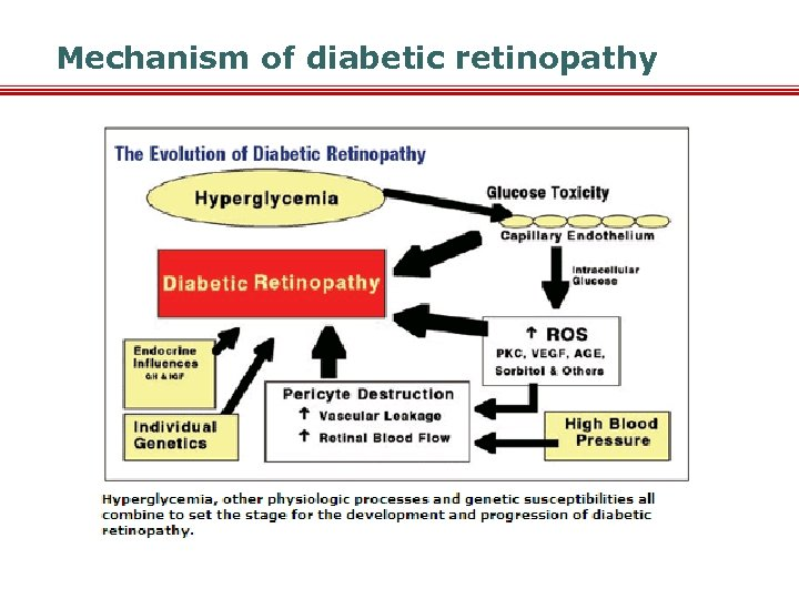 Mechanism of diabetic retinopathy