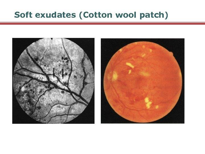 Soft exudates (Cotton wool patch)