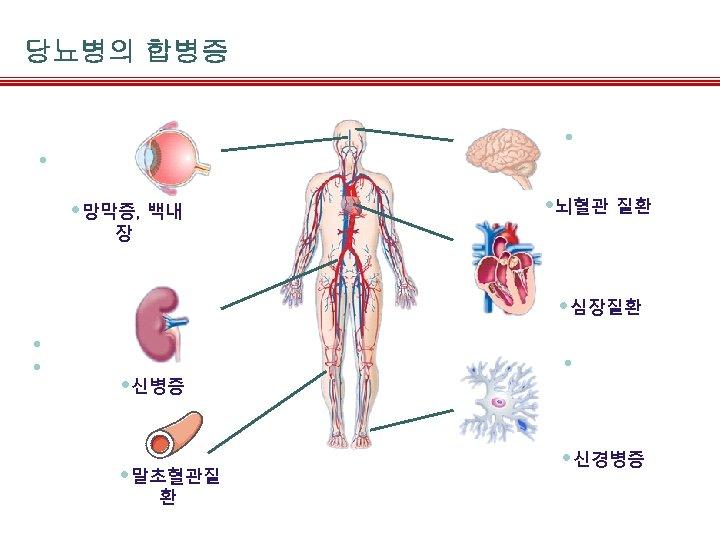 당뇨병의 합병증 • Stroke • Diabetic retinopathy • 망막증, 백내 • 뇌혈관 질환 장