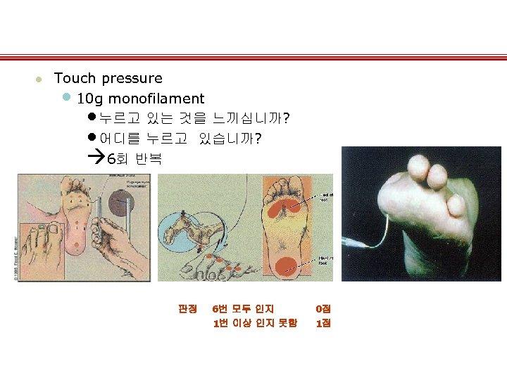 l Touch pressure • 10 g monofilament • 누르고 있는 것을 느끼십니까? • 어디를