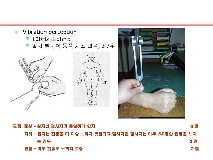 l Vibration perception • 128 Hz 소리굽쇠 • 엄지 발가락 등쪽 지간 관절, 좌/우