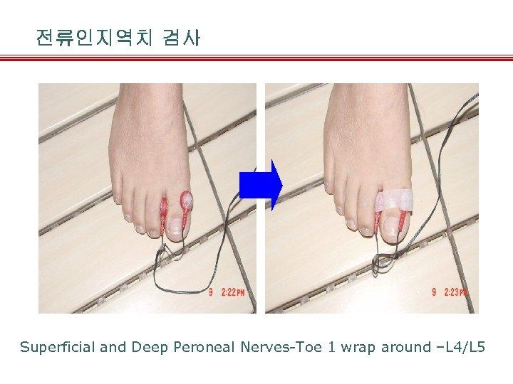 전류인지역치 검사 Superficial and Deep Peroneal Nerves-Toe 1 wrap around –L 4/L 5