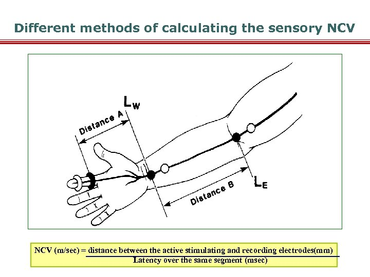 Different methods of calculating the sensory NCV (m/sec) = distance between the active stimulating