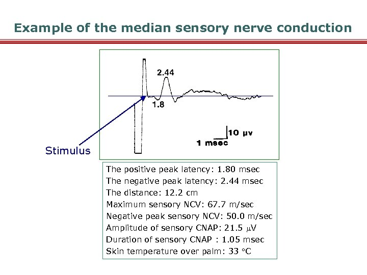 Example of the median sensory nerve conduction Stimulus The positive peak latency: 1. 80