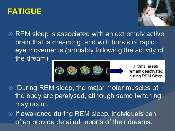FATIGUE REM sleep is associated with an extremely active brain that is dreaming, and