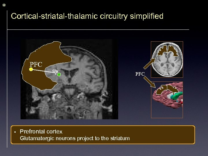 * Cortical-striatal-thalamic circuitry simplified PFC Glu § Prefrontal cortex Glutamatergic neurons project to the