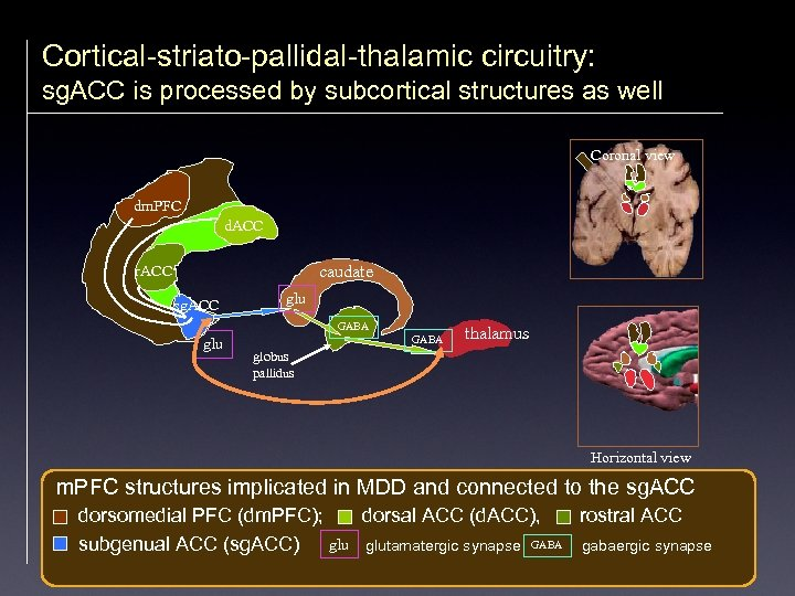 Cortical-striato-pallidal-thalamic circuitry: sg. ACC is processed by subcortical structures as well Coronal view dm.
