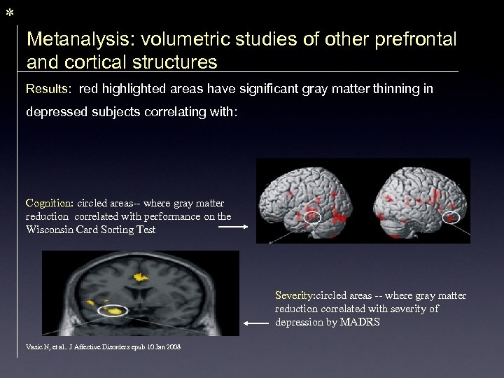 * Metanalysis: volumetric studies of other prefrontal and cortical structures Results: red highlighted areas