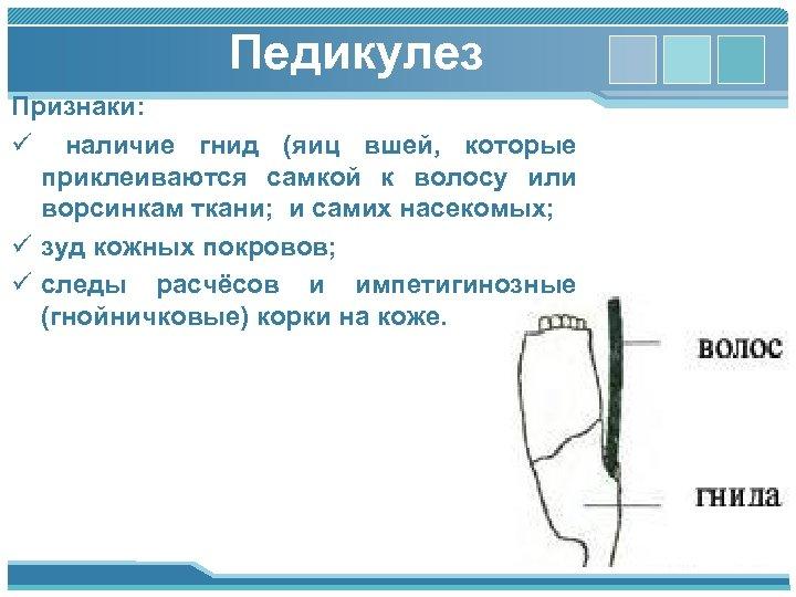 Педикулез Признаки: ü наличие гнид (яиц вшей, которые приклеиваются самкой к волосу или ворсинкам