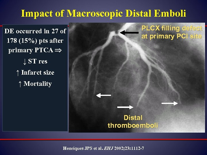 Impact of Macroscopic Distal Emboli DE occurred in 27 of 178 (15%) pts after