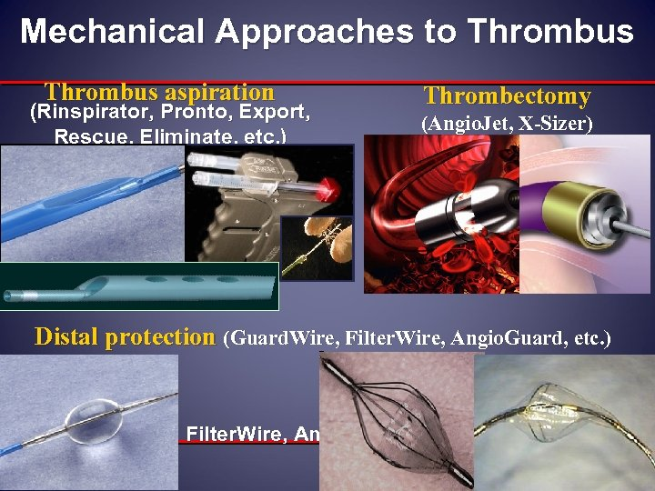 Mechanical Approaches to Thrombus aspiration (Rinspirator, Pronto, Export, Rescue, Eliminate, etc. ) Thrombectomy (Angio.