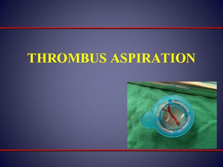 THROMBUS ASPIRATION