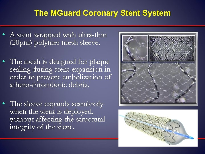 The MGuard Coronary Stent System • A stent wrapped with ultra-thin (20μm) polymer mesh