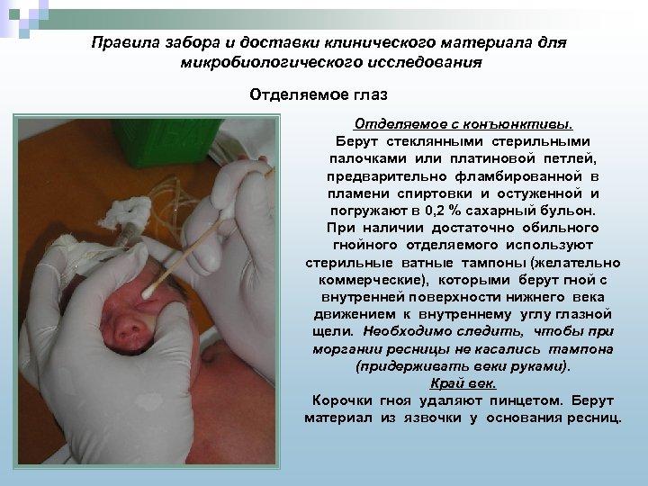 Правила забора и доставки клинического материала для микробиологического исследования Отделяемое глаз Отделяемое с конъюнктивы.