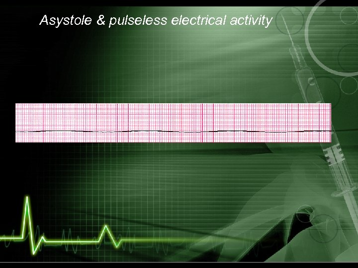 Asystole & pulseless electrical activity