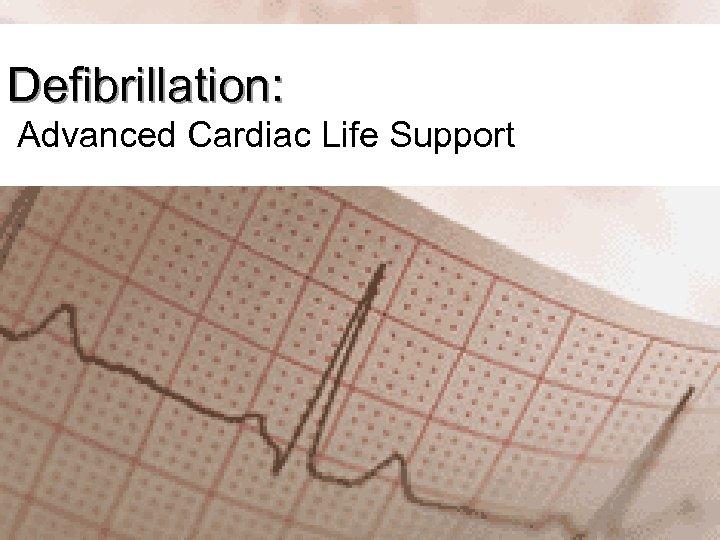 Defibrillation: Advanced Cardiac Life Support