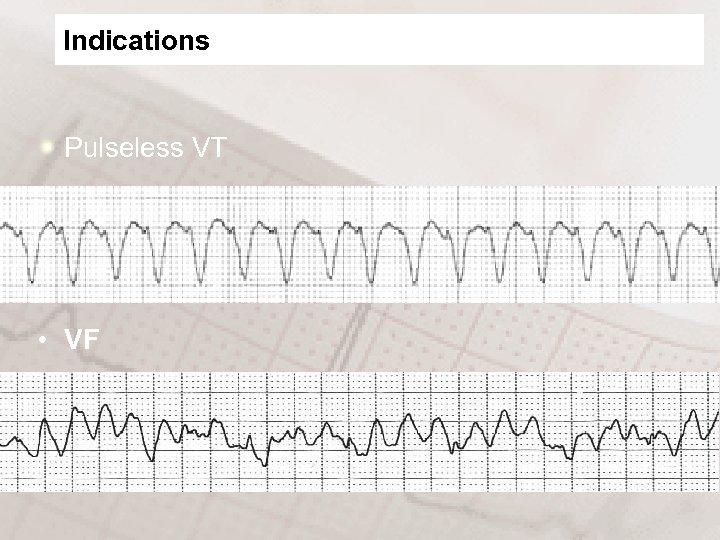 Indications Pulseless VT • VF
