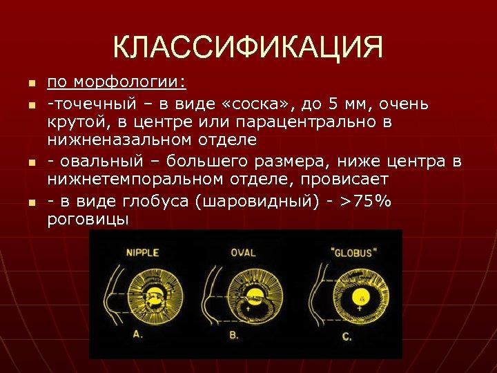 КЛАССИФИКАЦИЯ n n по морфологии: -точечный – в виде «соска» , до 5 мм,