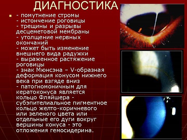 ДИАГНОСТИКА n - помутнение стромы - истончение роговицы - трещины и разрывы десцеметовой мембраны
