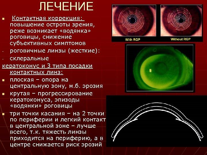 ЛЕЧЕНИЕ Контактная коррекция: повышение остроты зрения, реже возникает «водянка» роговицы, снижение субъективных симптомов роговичные