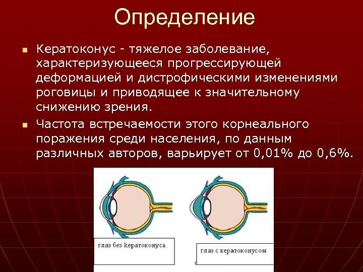 Определение n n Кератоконус - тяжелое заболевание, характеризующееся прогрессирующей деформацией и дистрофическими изменениями роговицы