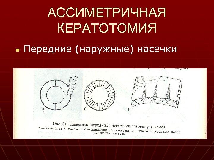 АССИМЕТРИЧНАЯ КЕРАТОТОМИЯ n Передние (наружные) насечки