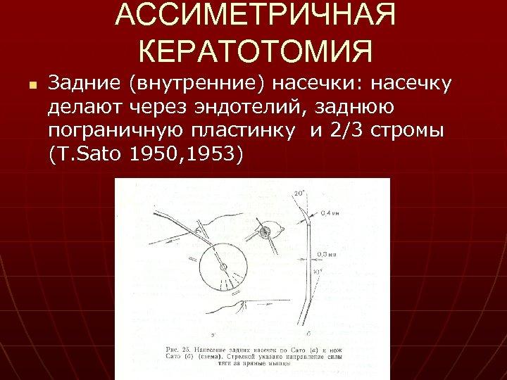 АССИМЕТРИЧНАЯ КЕРАТОТОМИЯ n Задние (внутренние) насечки: насечку делают через эндотелий, заднюю пограничную пластинку и