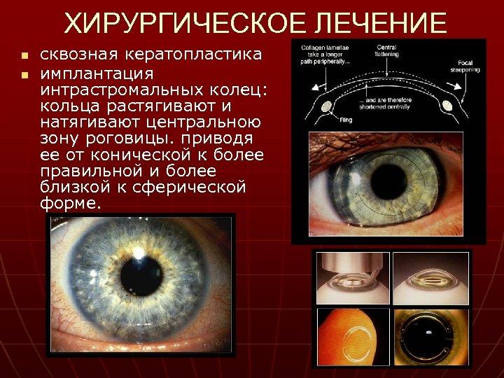 ХИРУРГИЧЕСКОЕ ЛЕЧЕНИЕ n n сквозная кератопластика имплантация интрастромальных колец: кольца растягивают и натягивают центральною