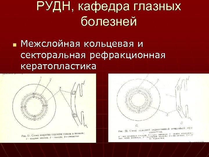 РУДН, кафедра глазных болезней n Межслойная кольцевая и секторальная рефракционная кератопластика