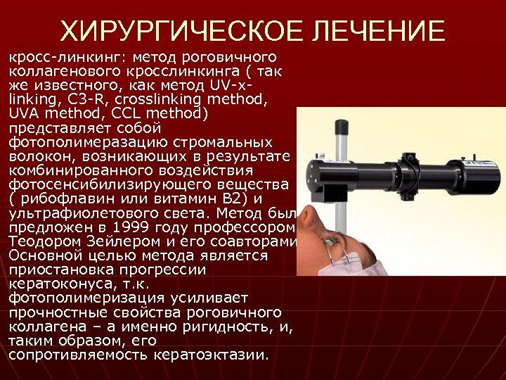 ХИРУРГИЧЕСКОЕ ЛЕЧЕНИЕ кросс-линкинг: метод роговичного коллагенового кросслинкинга ( так же известного, как метод UV-xlinking,