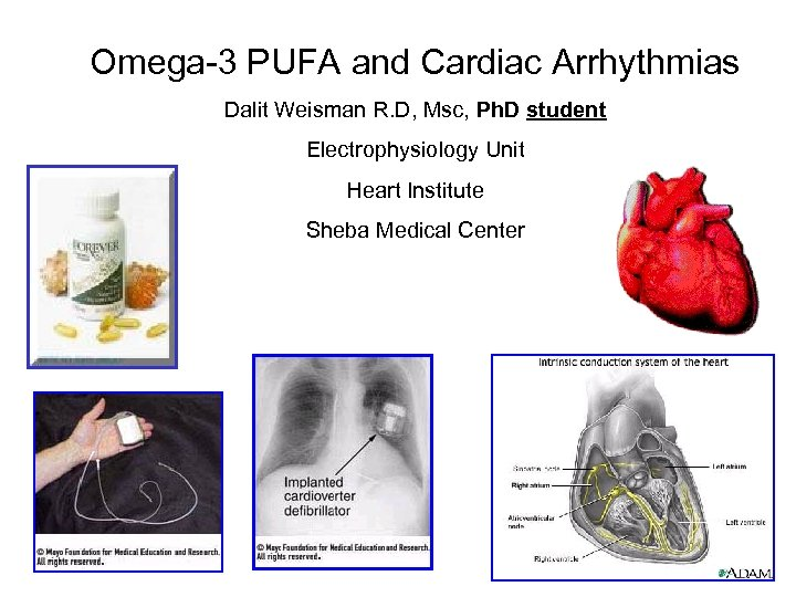 Omega-3 PUFA and Cardiac Arrhythmias Dalit Weisman R. D, Msc, Ph. D student Electrophysiology